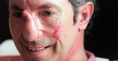 A man is transformed by a near-death experience on Mount